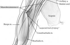 Кожномышечный нерв - N. Musculocutaneus - Анатомия